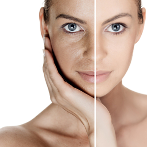 Retinoid for wrinkles and aging skin